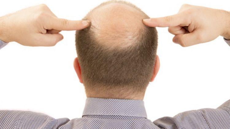 Saç tökülməsinin SƏBƏBLƏRİ