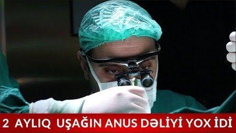Azərbaycanlı həkimdən inanılmaz əməliyyat