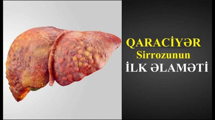 Qaraciyər Sirrozunun Əlamətləri - DİQQƏTLİ OLUN!