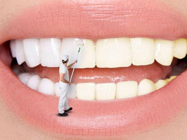 Bu üsulla dişləriniz ağappaq olacaq - YOXLAYIN