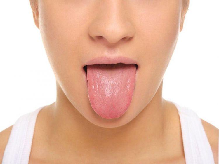 Dilin iltihabı – qlossit