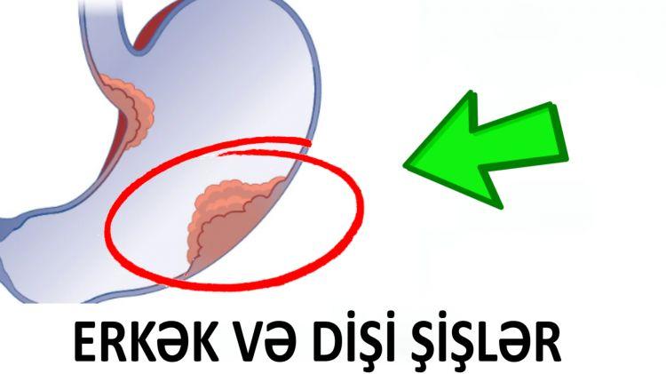 Erkək və Dişi şişlər nədir?  - Dr Elşən Qədimov