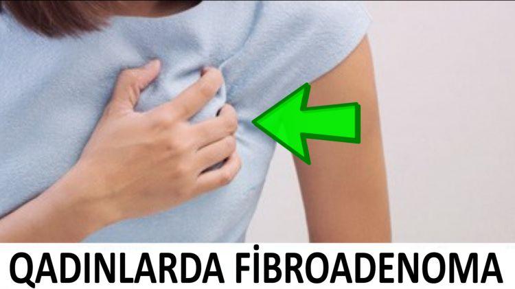 Süd vəzidə Fibroadenoma - Təhlükəlidirmi?