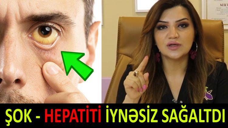 Azərbaycanlı həkim Hepatit xəstəsini dərmansız sağaltdı - ŞOK
